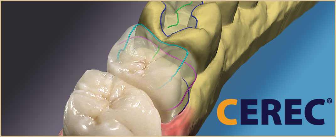 Single Visit CEREC Dental Crowns Las Cruces